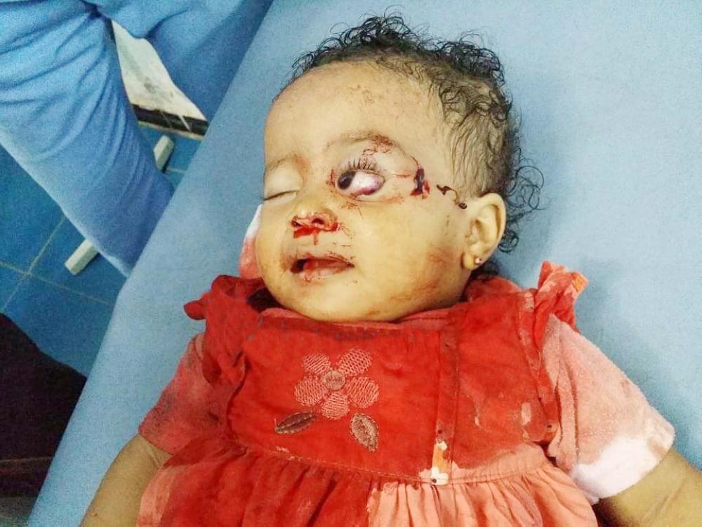 تجاهل مجازر الحوثي.. تغاضٍ عن منجزات التحالف
