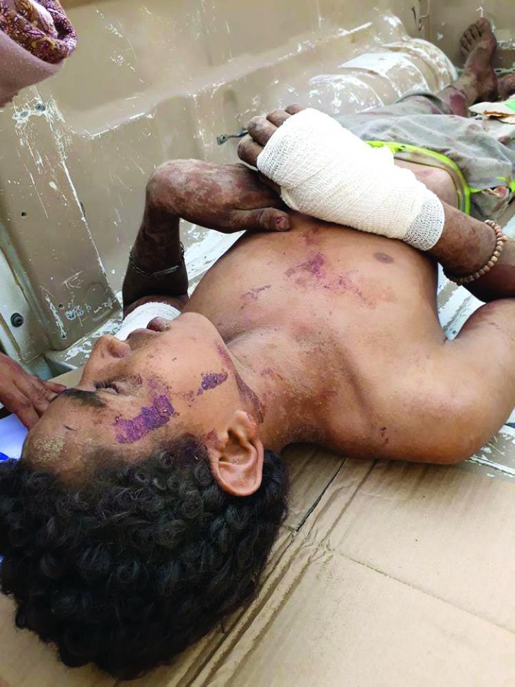 طفل يمني جنده الحوثيون قتل في معارك جبهة ميدي. (متداولة)