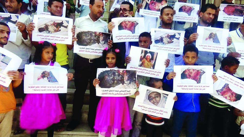 .. قاد UN للتهلكة.. شرعن انقلاب الحوثي