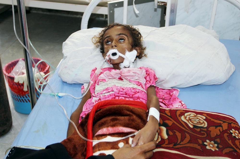طفلة يمنية تعاني من سوء التغذية تتلقى العلاج في مستشفى بالحديدة أخيرا. (أ. ف. ب)