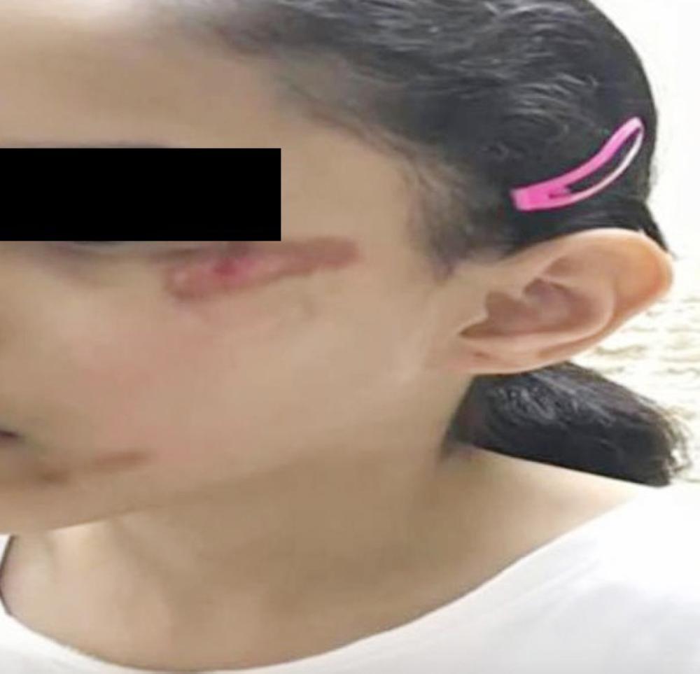 الطفلة المصابة بكدمات في إحدى مدارس حائل.
