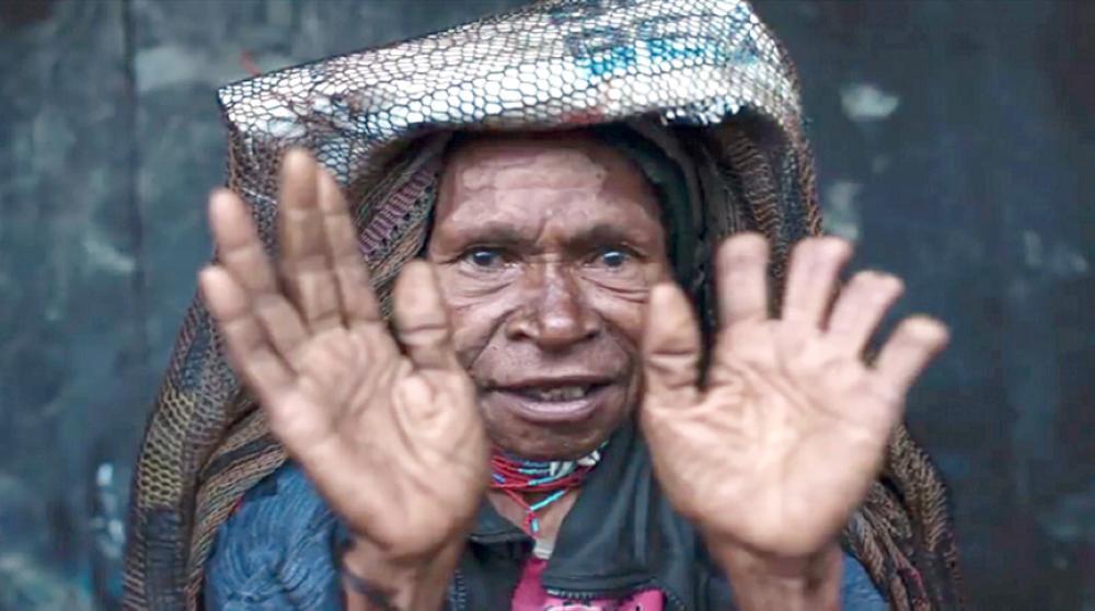 سيدة من القبيلة مبتورة الأصابع.