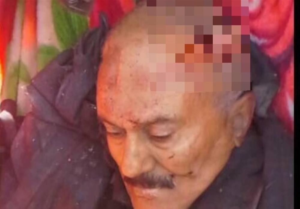 طبيب شرعي ينشر تقريرا.. كيف قتل الحوثيون صالح؟