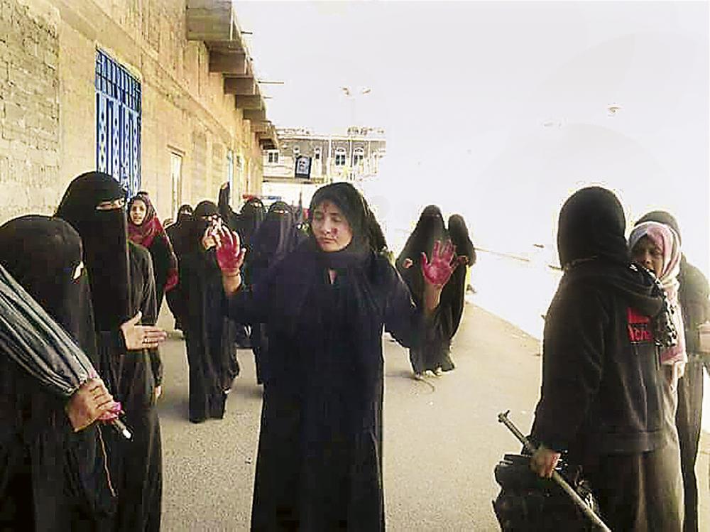 يمنيات تعرضن للضرب على أيدي ميليشيا الحوثي.