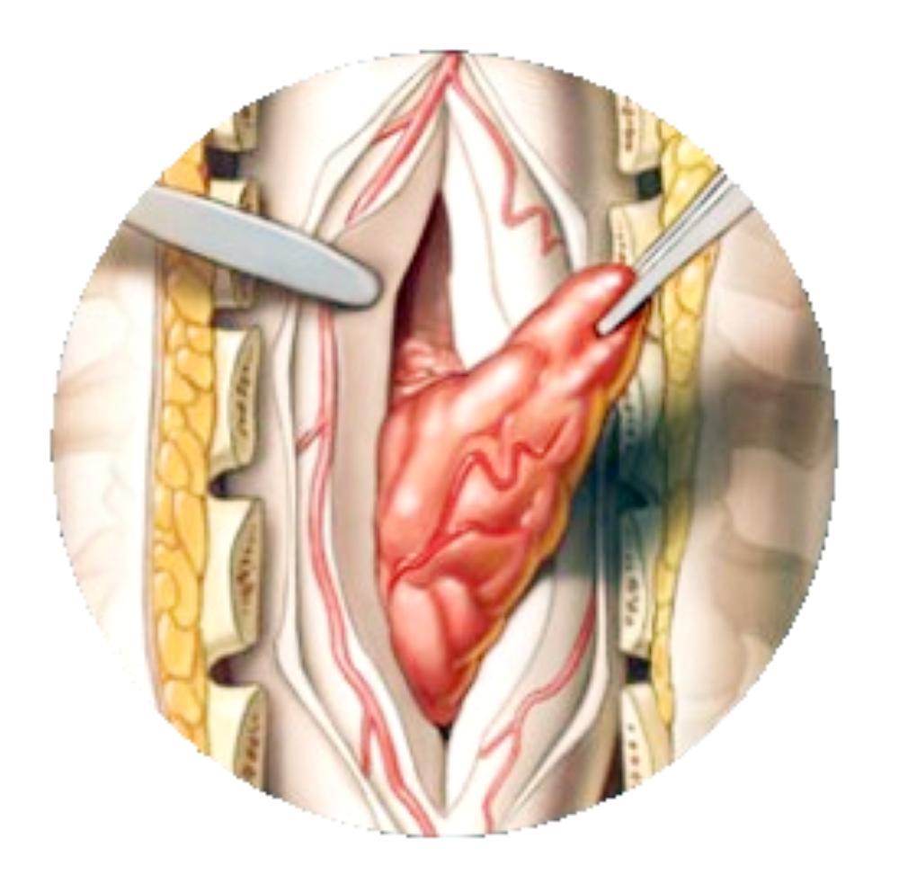 دواء لعلاج سرطان النخاع سبب لأمراض القلب
