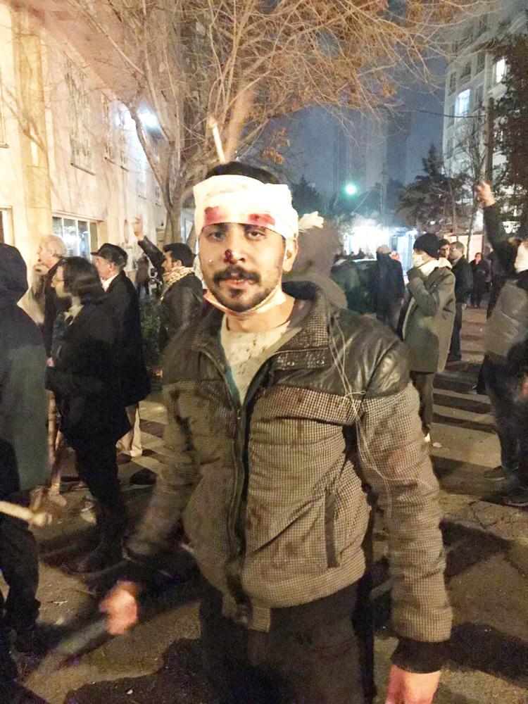إيراني أصيب على أيدي عناصر الأمن في الاحتجاجات ضد النظام أمس الأول. (متداولة)