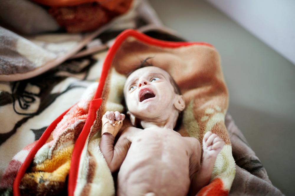 طفل يمني مصاب بسوء التغذية جراء ممارسات الميليشيا، منوم في أحد المستشفيات بصنعاء. (رويترز)
