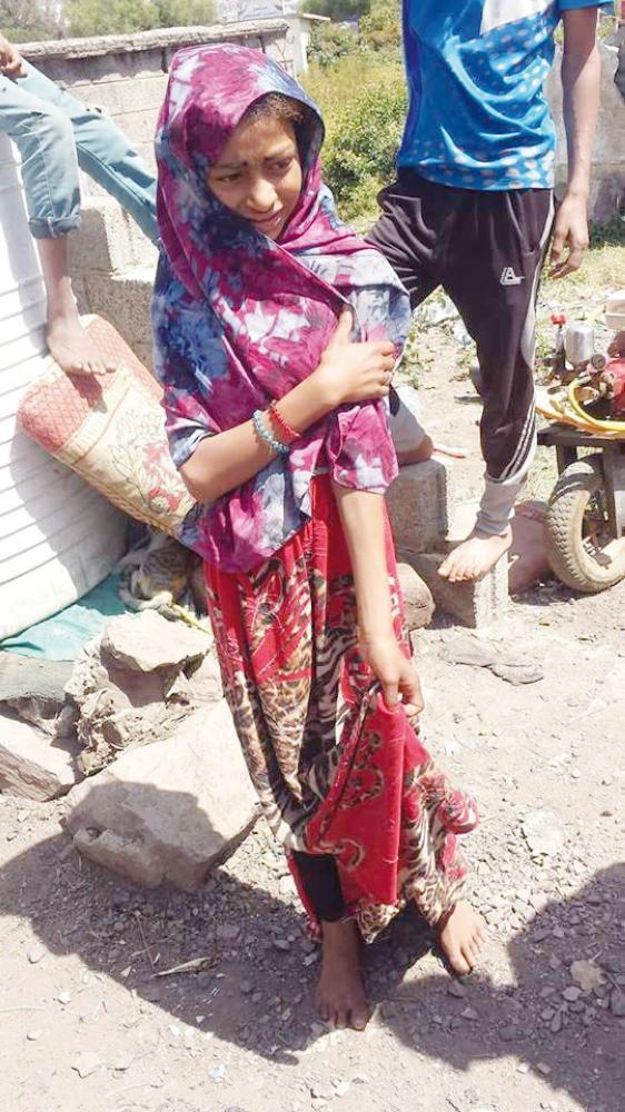 الطفلة منى التي أجبرها الحوثيون على الزواج. (متداولة في فيسبوك)