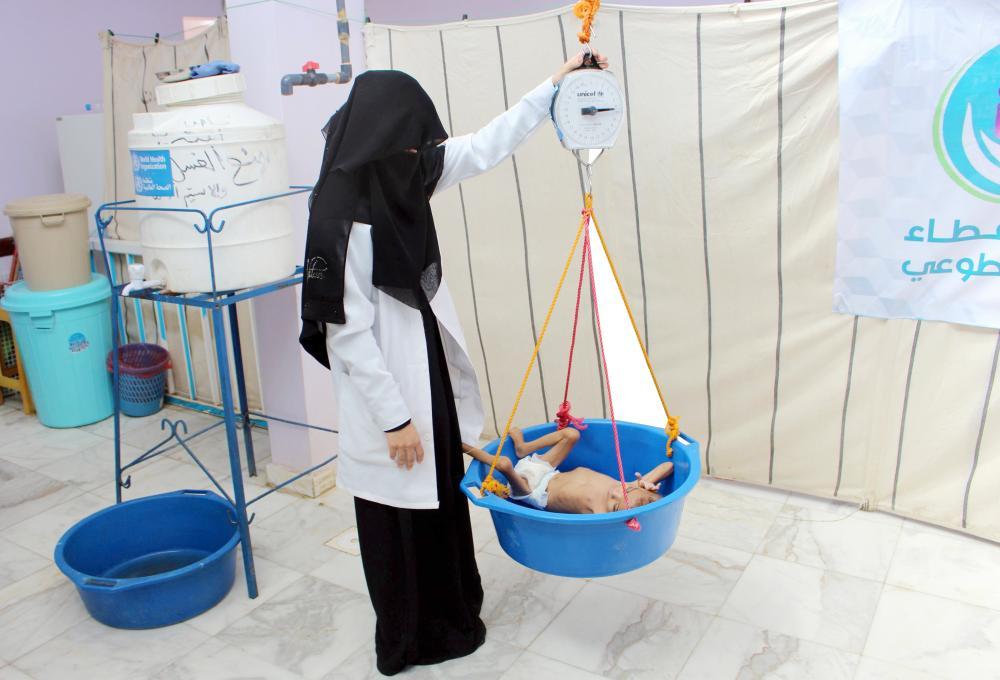 طفل يمني يعاني من سوء التغذية الحاد، يتم وزنه في مركز للعلاج في مستشفى في محافظة حجة شمال غرب اليمن، أمس الأول (أ.ف.ب)