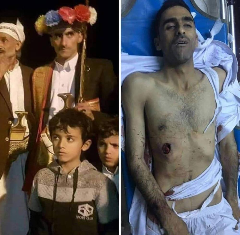 الحوثي يقتل عريساً في صنعاء ومواجهات عنيفة مع القبائل