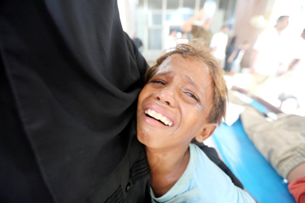 طفل يمني يبكي في مستشفى الثورة بعد إصابة شقيقه في إضراب  الحديدة .( رويترز)