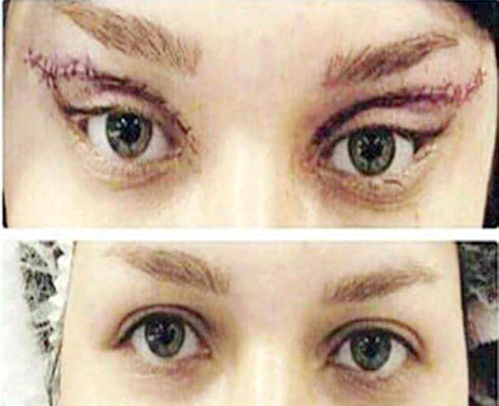 آثار عمليات التجميل على العيون.