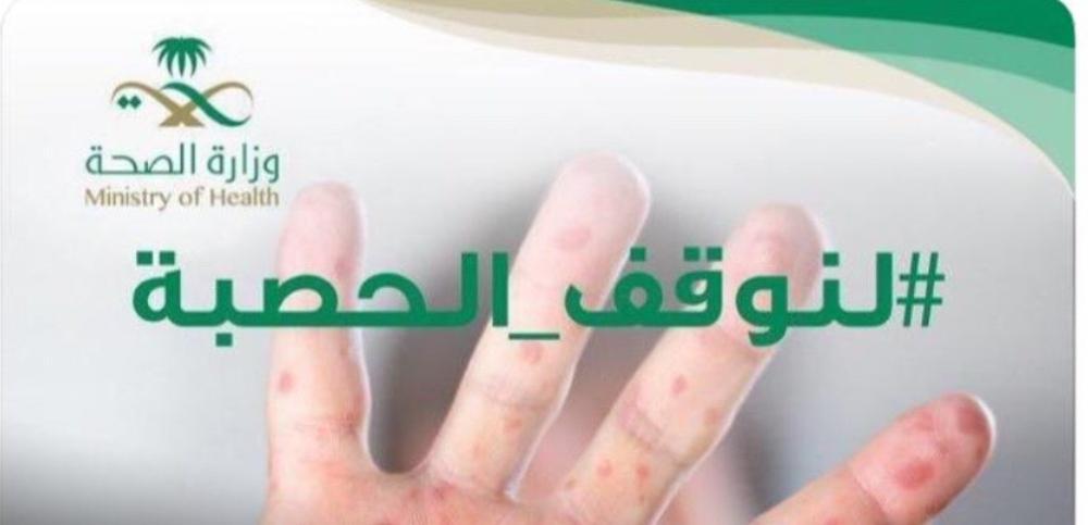 «الصحة»: حالات الحصبة في أعلى معدلاتها