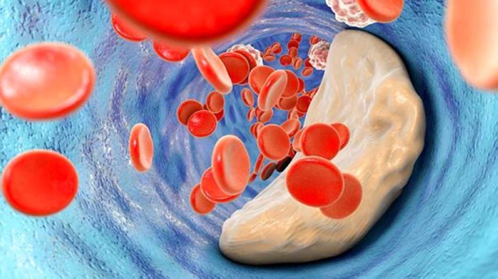 عقار يعالج الكوليسترول بلا آثار جانبية