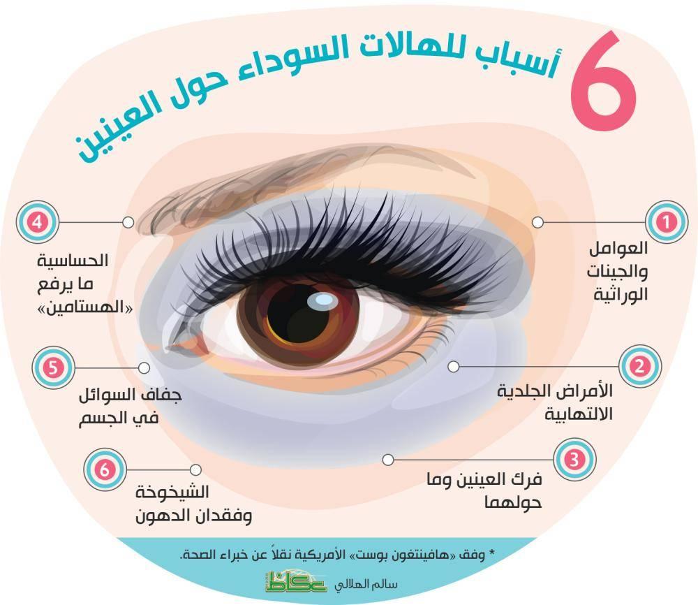 6 أسباب للهالات السوداء حول العينين
