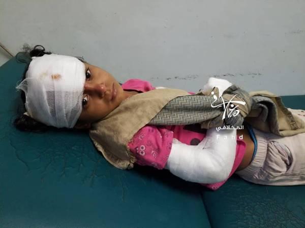 أطفال من تعز اغتالهم الحوثي.