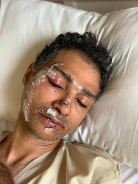 المواطن حريري يكشف لـ«عكاظ» تفاصيل الاعتداء عليه بماليزيا