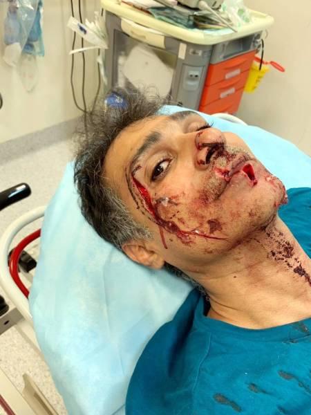 محمد الحريري كما بدا بعد الاعتداء.