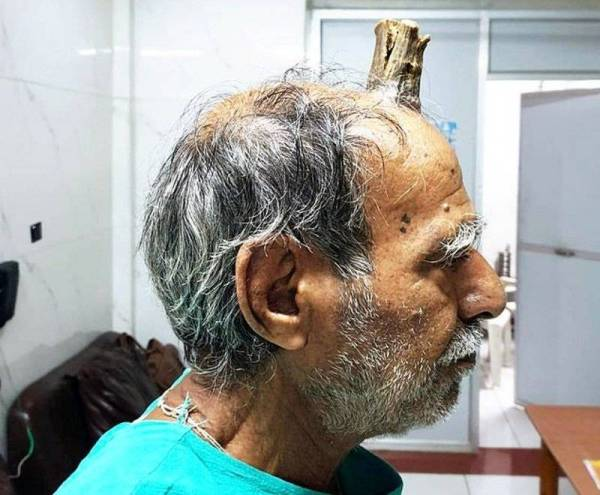 حالة نادرة.. قرن ينمو على رأس مزارع هندي