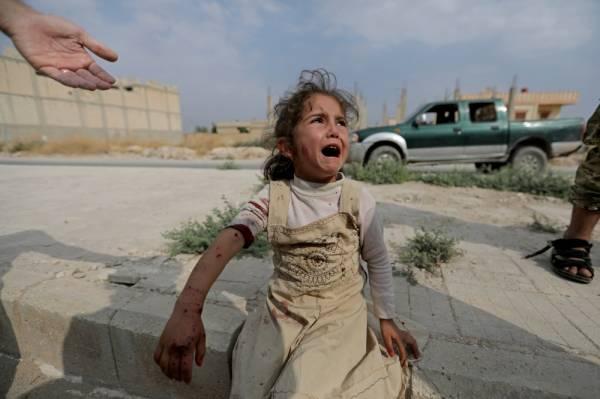 طفلة سورية عقب  إصابته في العدوان التركي على بلدة تل أبيض السورية أمس.  (أ.ف.ب)