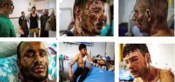 صور لعدد من ضحايا الأسلحة المحرمة التي استخدمها نظام أردوغان خلال العدوان التركي على شمال سورية. (مجلة نيوزويك الأمريكية)