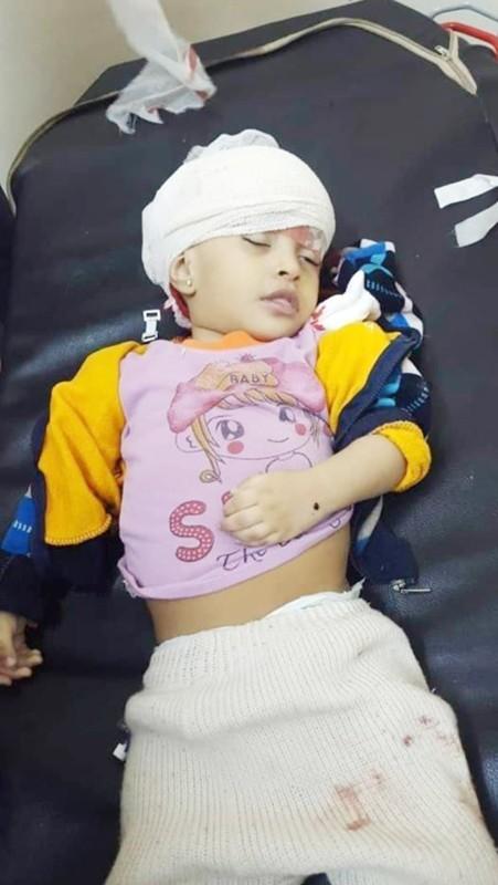 طفلة يمنية قتلت بقصف حوثي على حي السجن المركزي غرب تعز أمس الأول.(متداولة)