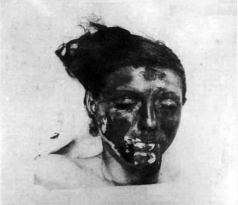 إحدى ضحايا تجارب «الوحدة 731» تعرضت لحروق الفوسفور.
