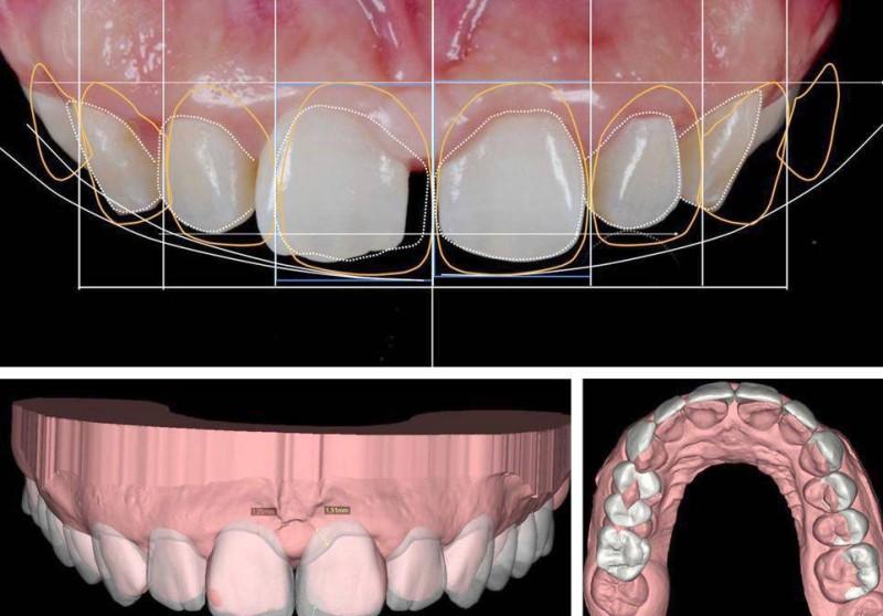 تقنية تعديل الأسنان.