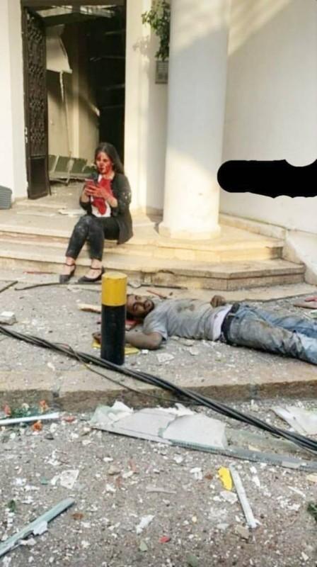 مصابان في الانفجار الذي استهدف العاصمة بيروت أمس.