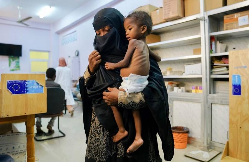 امرأة يمنية تحمل طفلها المصاب بسوء التغذية في أحد مراكز الأمم المتحدة بصنعاء. (صفحة الأمم المتحدة)