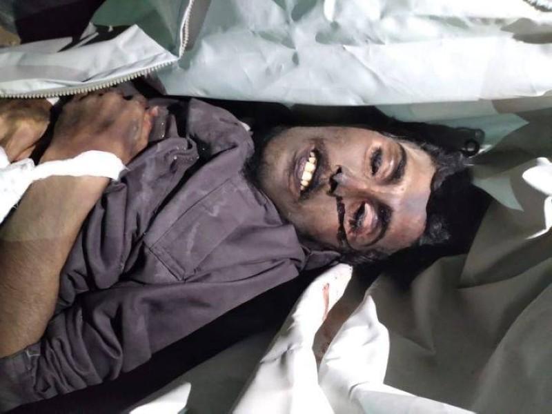 جثة محمد الصباري ضمن عملية تبادل الجثث مع الجيش الوطني، وتبدو آثار تصفية وتعذيب جسدي.