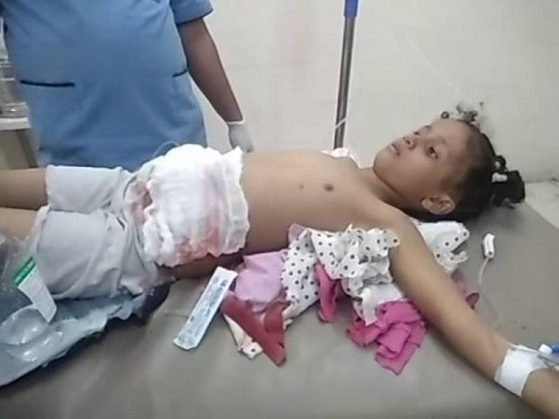 جرائم الحوثي في تعز.