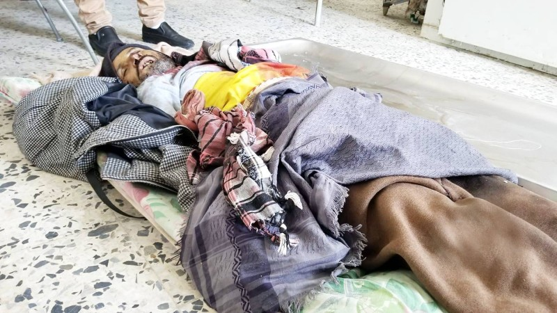 مدني يمني قتلته مليشيا الحوثي و4 من أفراد أسرته وإصابة 7 آخرين بعد تفخيخ منزلهم في محافظة تعز أمس.