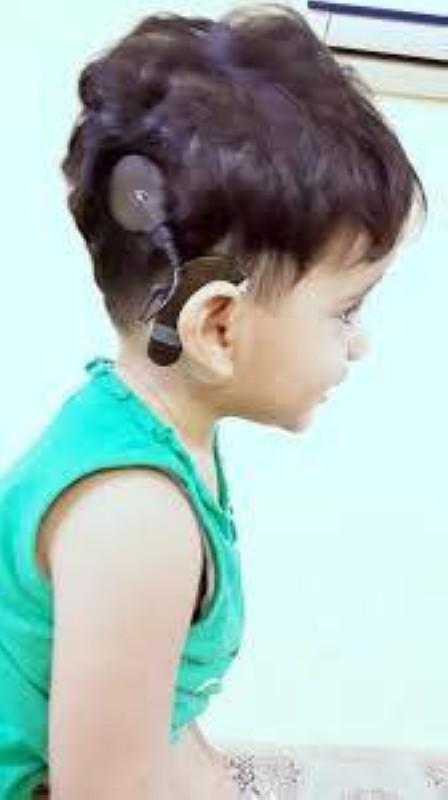 طفلة خضعت لزراعة قوقعة إلكترونية.