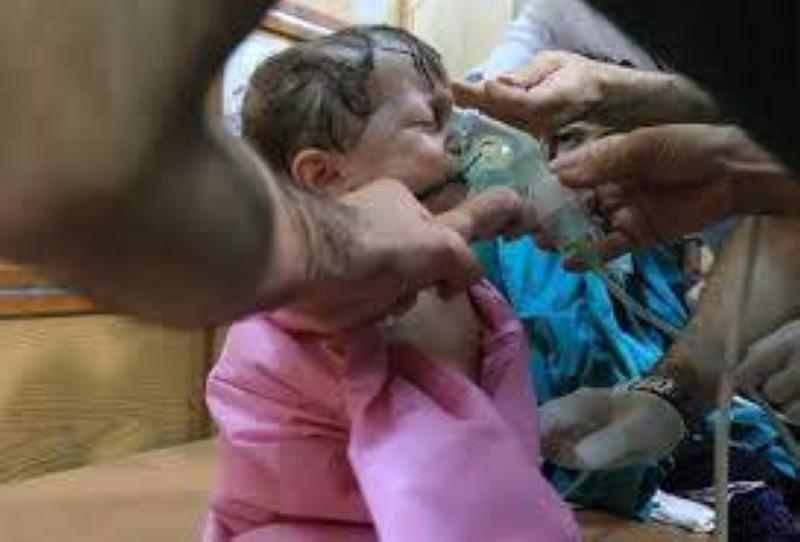 طفل سوري من ضحايا الهجوم الكيماوي.