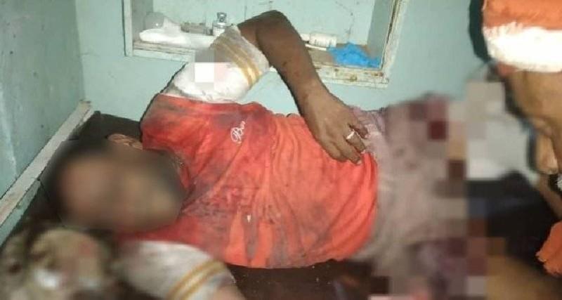مدني من ضحايا الحوثيين في الحديدة ليلة أمس.