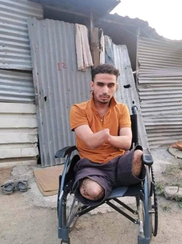 معاق يمني من ضحايا ألغام الحوثي بعد فقد اطرافه وعيونه ينتظر نقله إلى ألمانيا لاجراء عملية لإحدى عينيه.