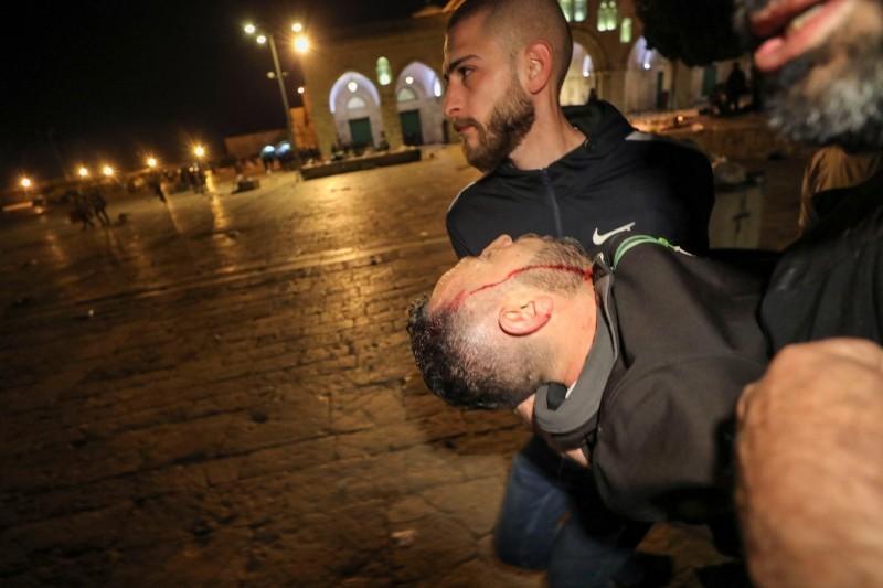 جريح فلسطيني خلال المواجهات مع شرطة الاحتلال في القدس.