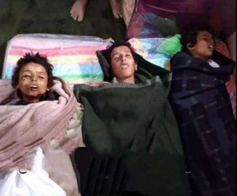 أطفال ضحايا الحوثي.