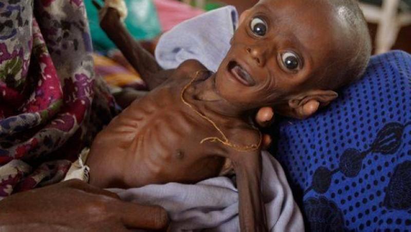 طفل يمني يعاني من سوء التغذية.